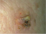 This is an early squamous cell carcinoma.