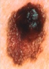 This is a melanoma. Note it has an irregular shape and irregular pigmentation. These are all typical features of melanoma.